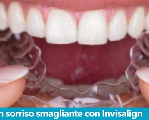 Denti allineati Invisalign Sandonato Medica